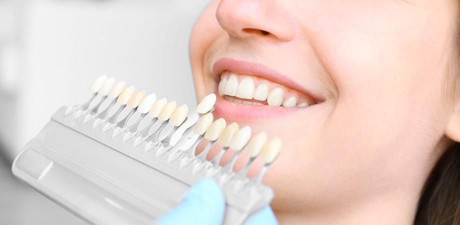 Pulizia e sbiancamento denti - 3C Salute